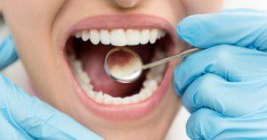 Preventive Dentistry 4